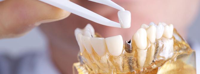 Dental Implants Jacksonville FL