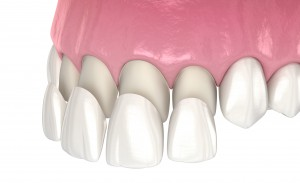 A medical concept image of dental veneers being placed on the top front row of teeth.