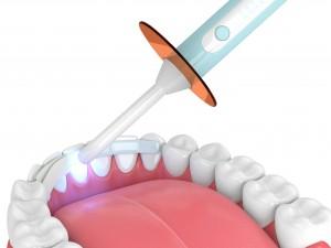 A 3d render of a dental bonding procedure