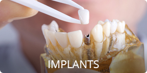 Dental Implants Jacksonville FL